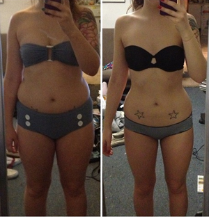 305-weight-loss-before-after-women-thighs