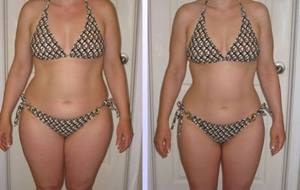 HCG-Before-And-After