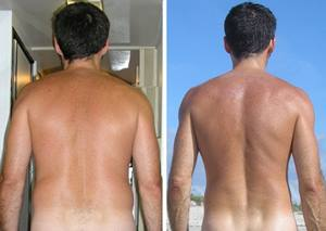 hoodia-before-after-diet-picture
